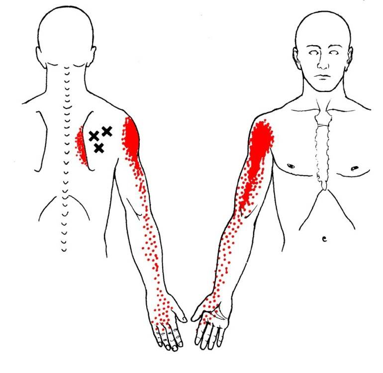 infraspinatus-trigger-points